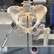 Photo: Hip implant