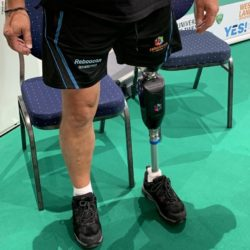 Foto: Die Prosthetic Knee von Reboocon Bionics; Copyright: beta-web