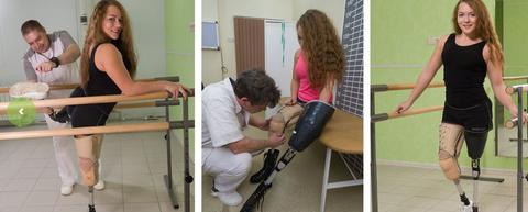 Lower limbs prosthetics