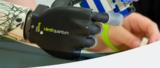 Armprothesen